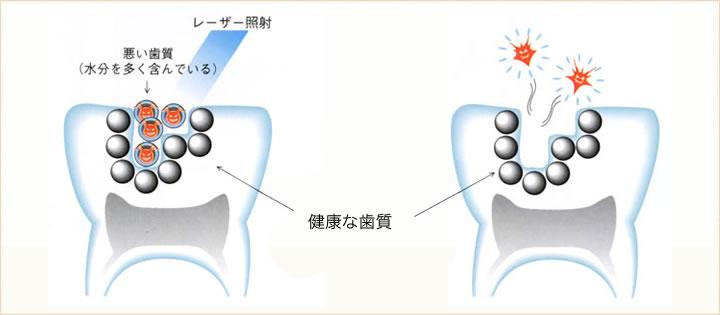 虫歯のレーザー治療