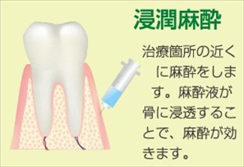 時間 歯医者 麻酔 歯医者さんでの麻酔完全まとめ。麻酔の種類、副作用、効果など写真付きでまとめてあります!